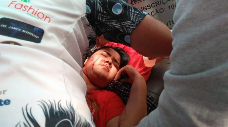 Jornalista é ferida por pedra atirada contra lancha vinda de Parintins