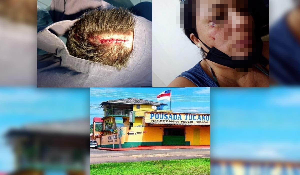 Hospedagem termina em agressão e escolta policial a turistas