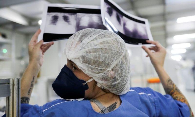 Coronavírus em alta, AM acrescenta mais 20 mortes e 740 contaminações